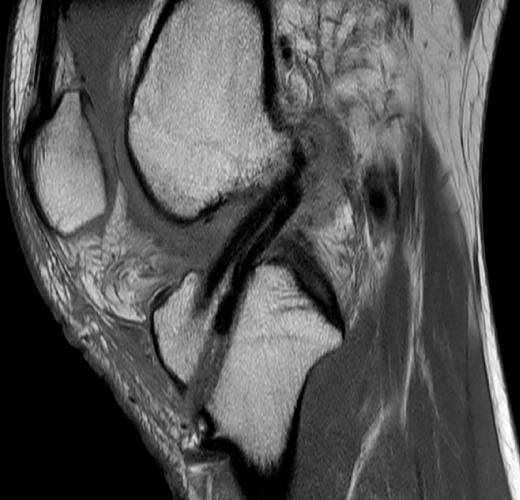 術後MRI画像