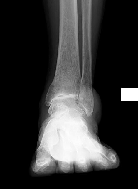 変形性足関節症(術前)の写真