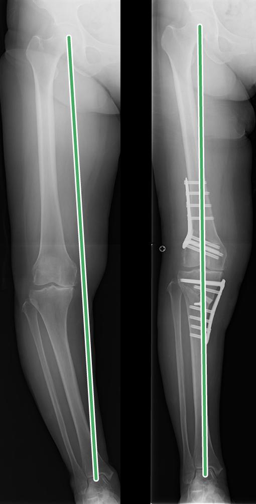 膝周囲骨切り術